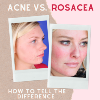 Acne vs rosacea How to Tell the Difference